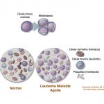 Então, o que é leucemia mesmo?